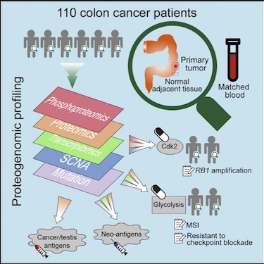 Image for project Colon Cancer – Adenocarcinoma